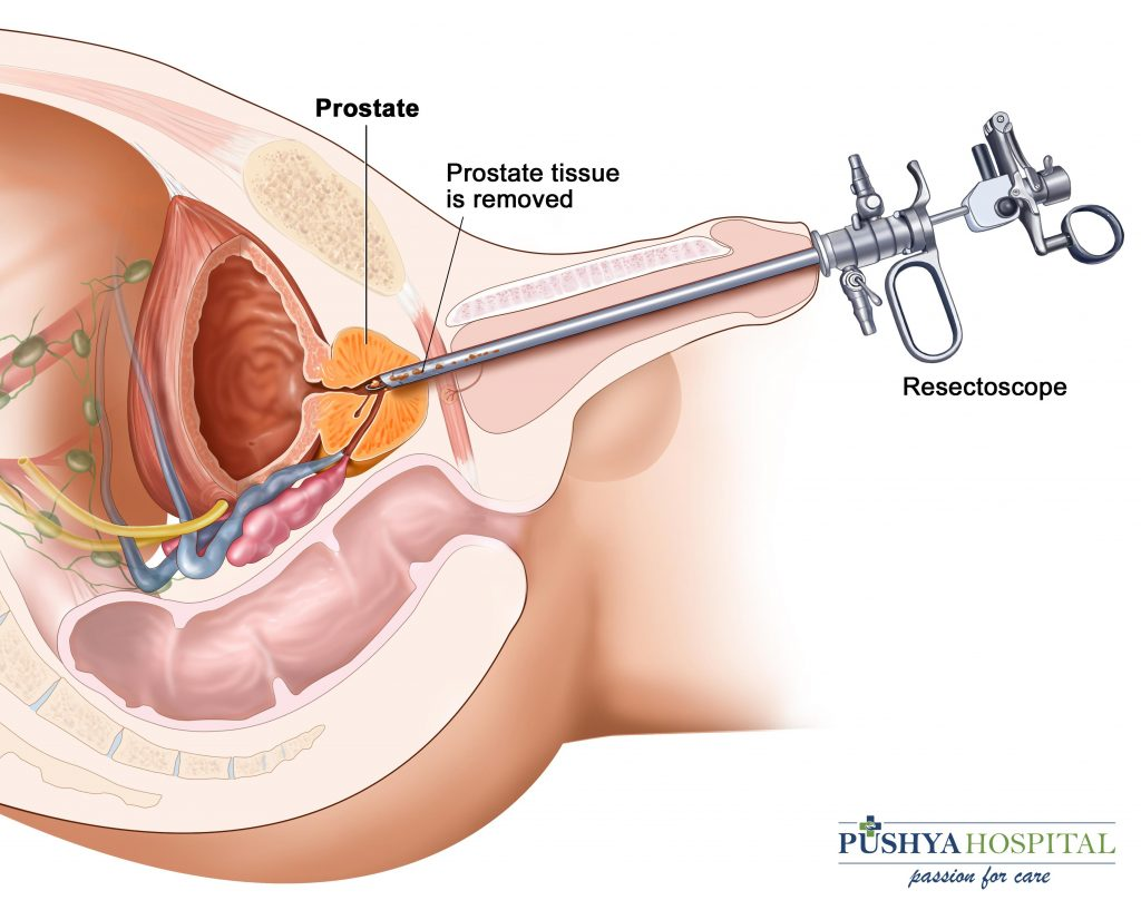 prostate disease treatment ahmedabad